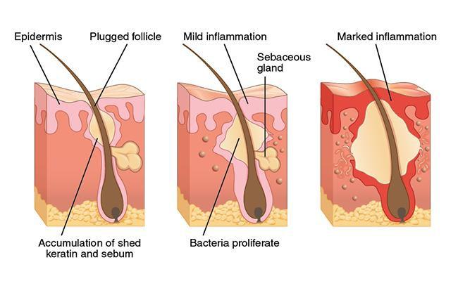 what-causes-feline-acne